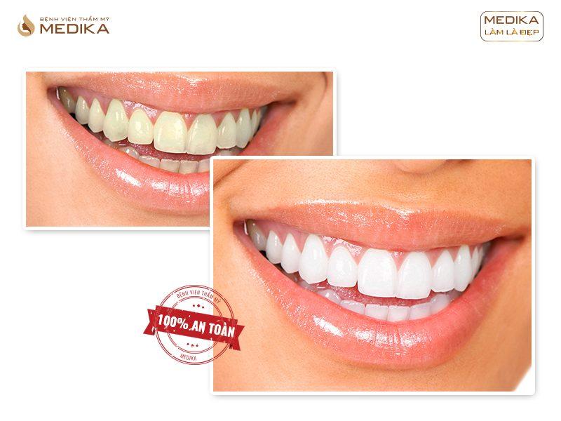 Phương pháp tẩy trắng răng hiệu quả tại Nha Khoa MEDIKA