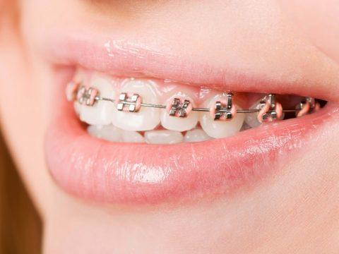 Niềng răng thẩm mỹ