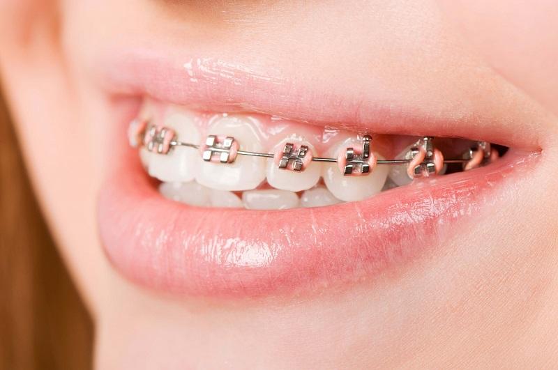 Niềng răng thẩm mỹ ở Nha Khoa MEDIKA