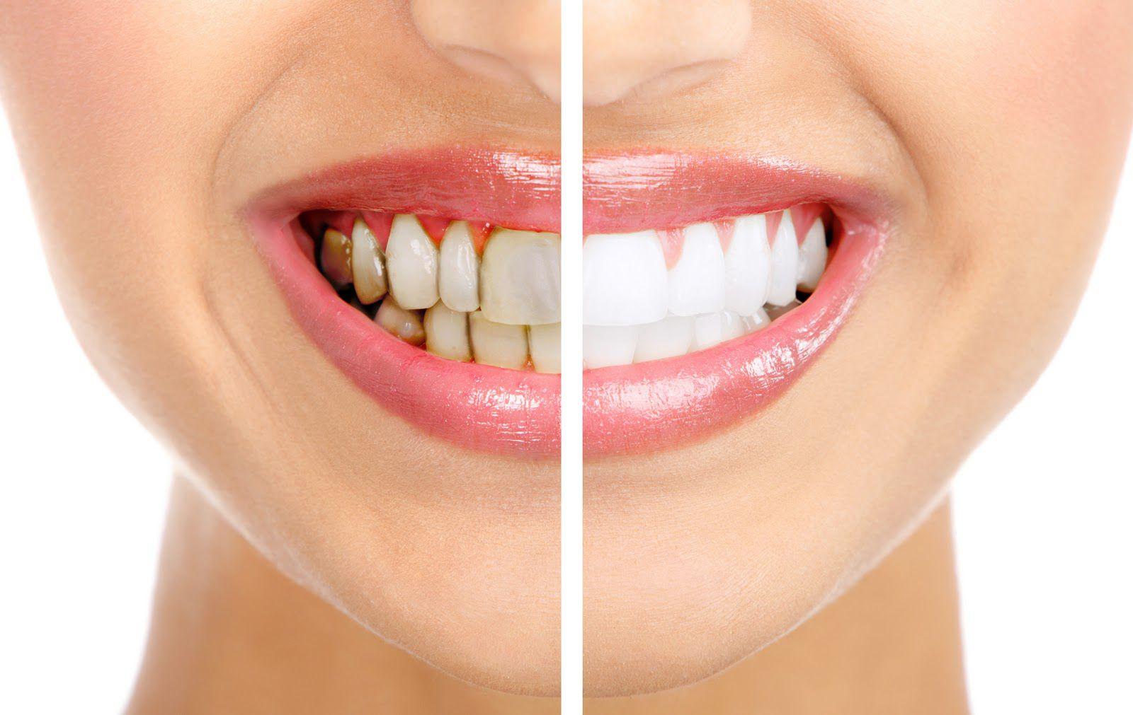 Bọc răng sứ thẩm mỹ giúp bạn tự tin với nụ cười trắng sáng