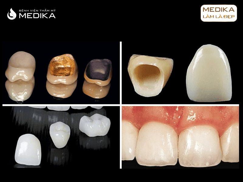 Các loại răng sứ thẩm mỹ tại Nha khoa MEDIKA