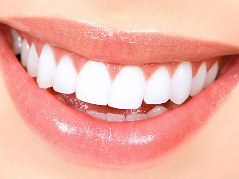 Cách bọc răng sứ Veneer Nha Khoa MEDIKA