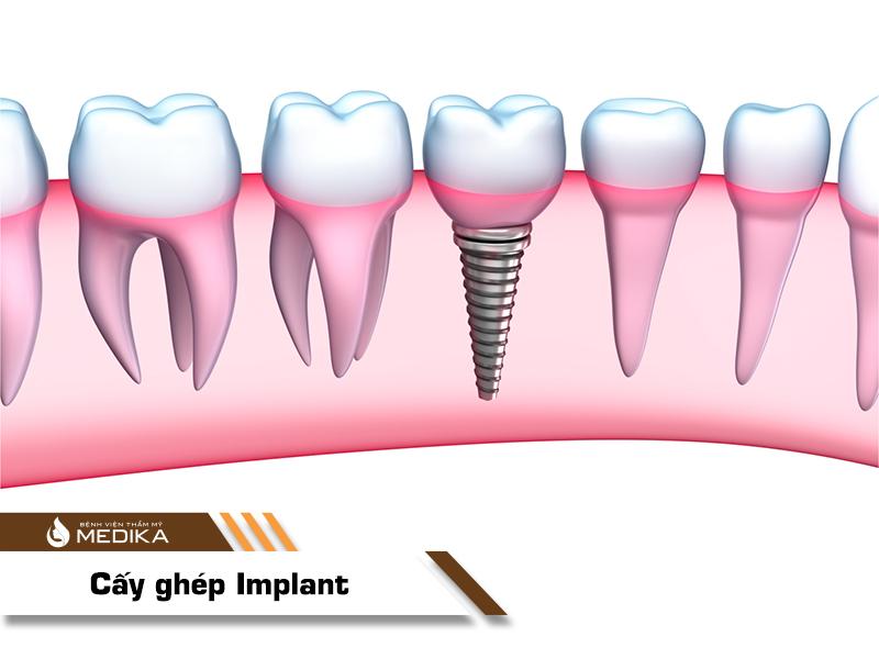 Cấy ghép Implant ở Nha khoa MEDIKA