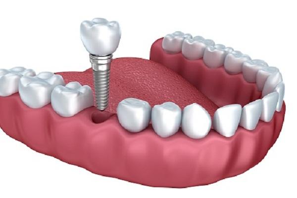 Cấy ghép Implant hay trồng răng Implant thay thế răng thật