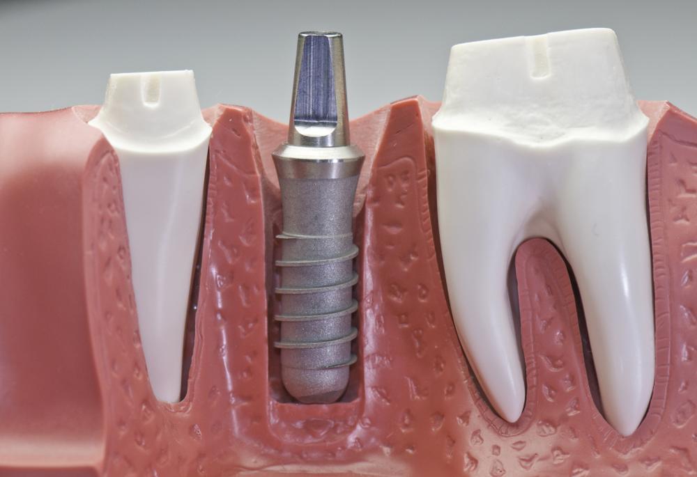 Cấy ghép implant - Nha Khoa MEDIKA