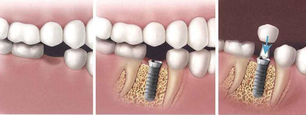Cấy ghép Implant tại Nha khoa MEDIKA