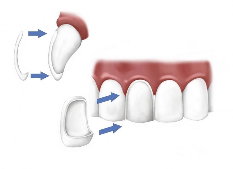 Dán răng sứ thẩm mỹ đẹp trắng sáng tại Nha Khoa MEDIKA
