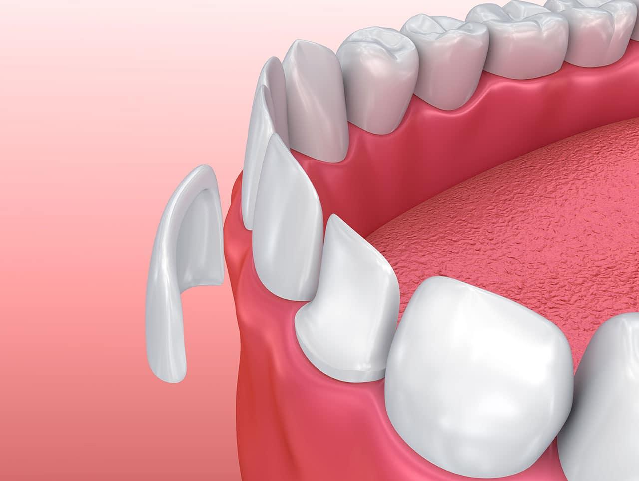 Dán sứ thẩm mỹ cho hàm răng trắng đều - Nha Khoa MEDIKA
