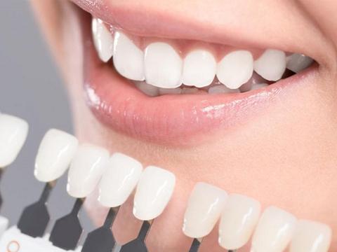 Dán sứ thẩm mỹ giúp răng đều màu - Nha Khoa MEDIKA