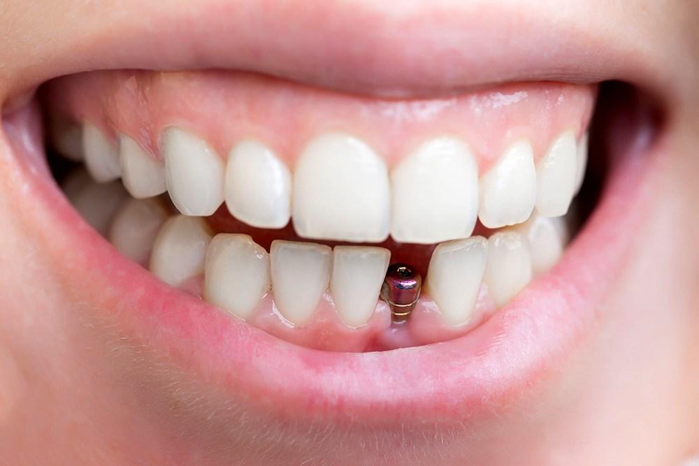 Đối tượng cấy ghép Implant
