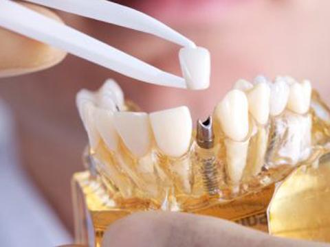Phương pháp cấy ghép Implant răng sứ MEDIKA