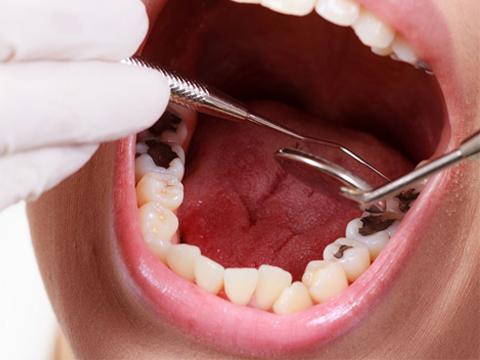 Nhổ răng sâu hoặc trám răng - Nha khoa MEDIKA