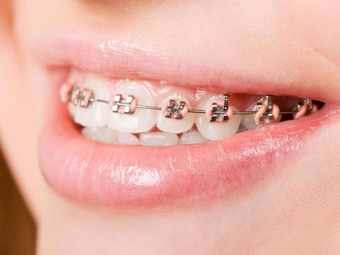 Phương pháp niềng răng thẩm mỹ tại Nha Khoa MEDIKA