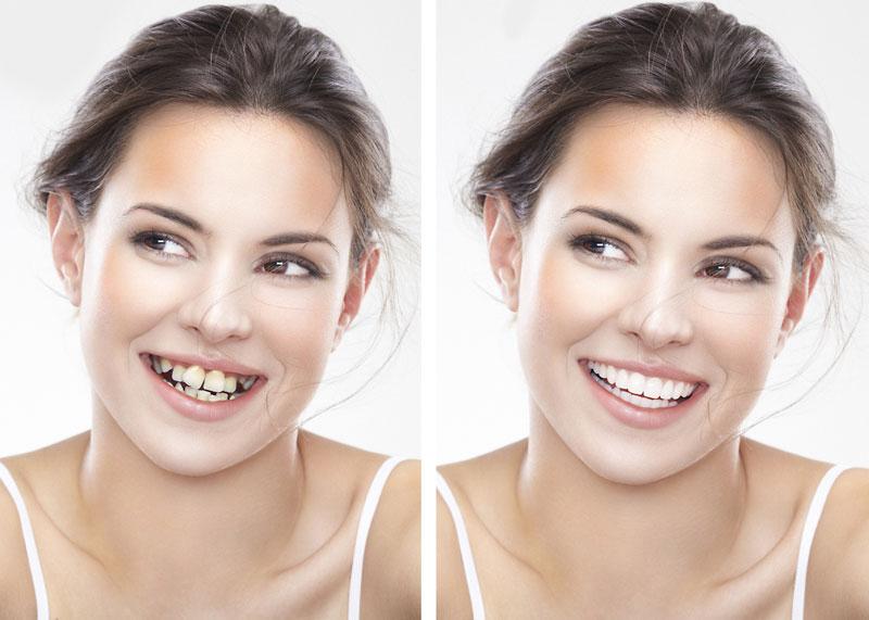 Niềng răng giúp bạn cải thiện răng thưa thớt và làm đều răng