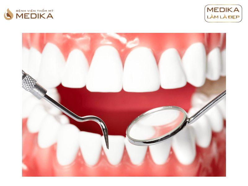 Phương pháp bọc răng sứ thẩm mỹ tại Nha khoa MEDIKA