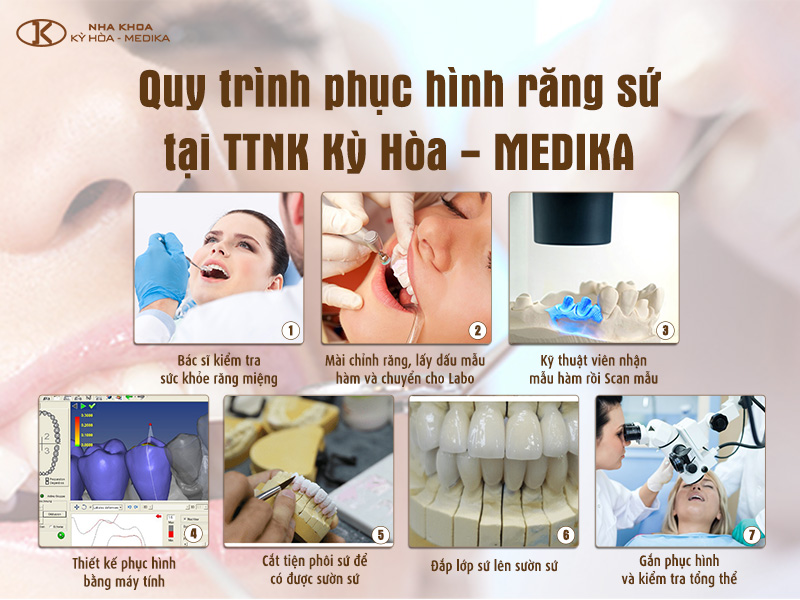 Quy trình phục hình răng sứ tại Nha khoa MEDIKA