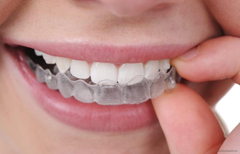 Tẩy trắng răng rạng ngời nụ cười trắng sáng