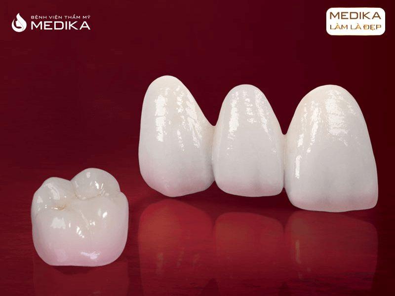 Thay thế răng sứ thẩm mỹ tại Nha Khoa MEDIKA