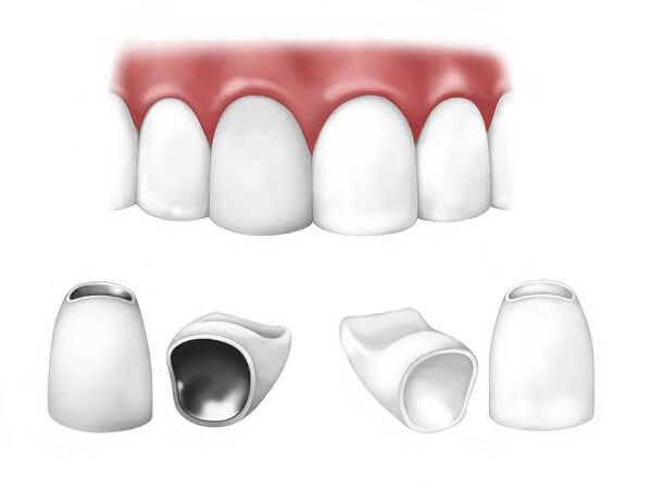 Bọc răng sứ thẩm mỹ cho các loại răng