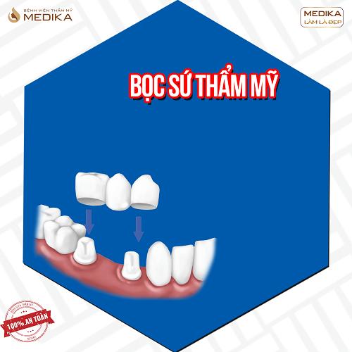 Bọc răng sứ trung tâm Nha Khoa MEDIKA