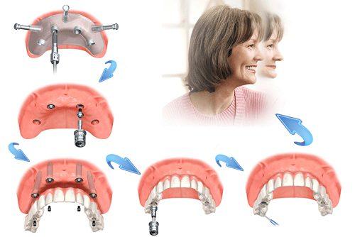 Cấy ghép Implant răng hàm có đau không? - Nha Khoa MEDIKA