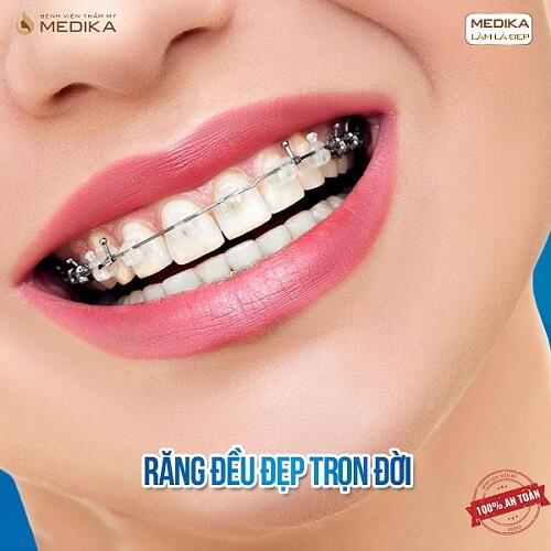 Niềng răng thẩm mỹ răng đều đẹp trọn đời Nha Khoa MEDIKA