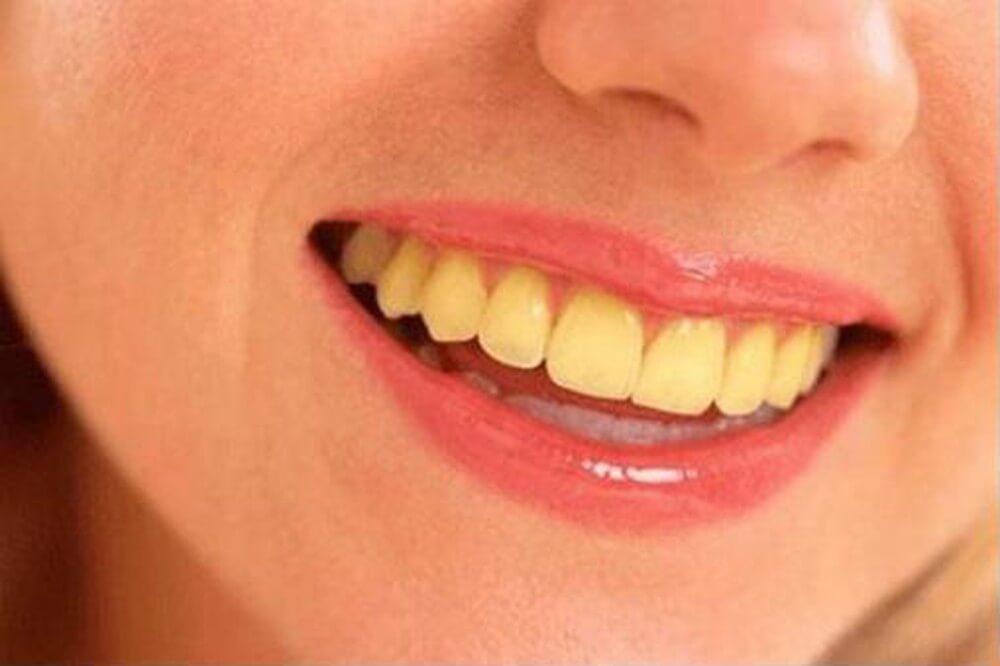 Răng bị ố vàng - Nha Khoa MEDIKA