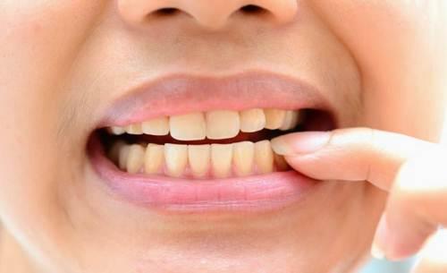 Răng ố vàng - Nha Khoa MEDIKA