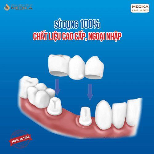 Bọc răng sứ chất liệu cao cấp ngoại nhập Nha khoa MEDIKA