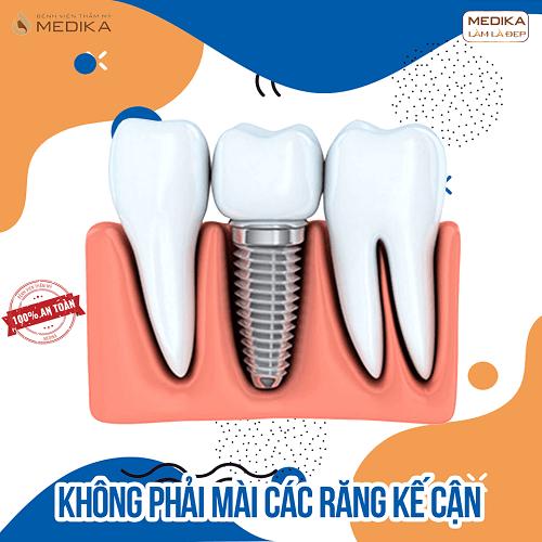 Cấy ghép Implant không phải mài răng kề cận Nha Khoa MEDIKA