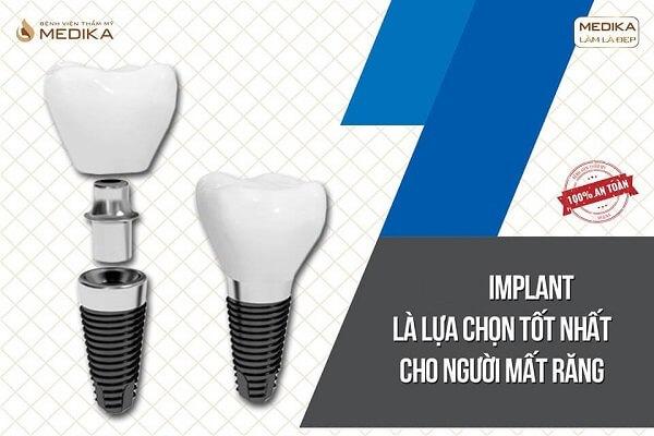 Cấy ghép Implant là lựa chọn tốt nhất cho người mất răng Nha khoa MEDIKA