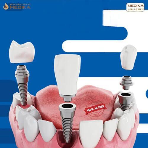 Cấy ghép Implant với nhiều vị trí răng mất Nha Khoa MEDIKA