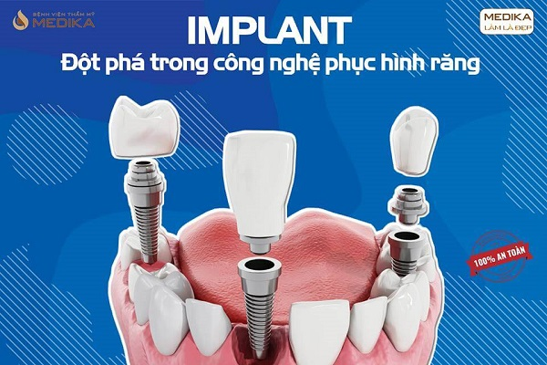 Cấy Implant tại Nha Khoa MEDIKA