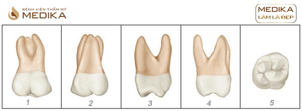 Chữa tủy răng tiền cối lớn hàm trên Nha Khoa MEDIKA