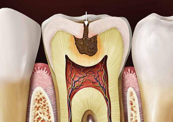 Hình ảnh bên trong chiếc răng sâu Nha Khoa MEDIKA