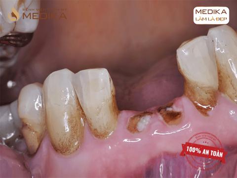 Nhổ chân răng