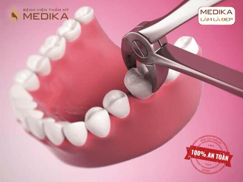 Nhổ răng phẫu thuật đơn giản