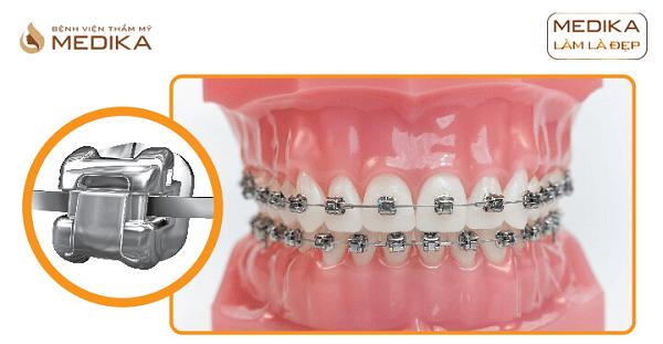 Niềng răng chỉnh hình 2 hàm Nha Khoa MEDIKA