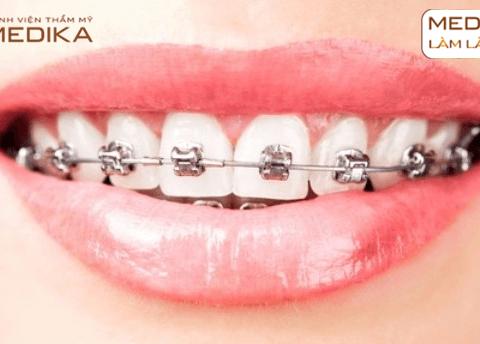 Niềng răng chỉnh hình - Mắc cài kim loại