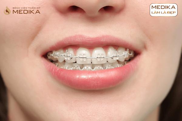 Niềng răng chỉnh hình mắc cài cao cấp 2 hàm Nha Khoa MEDIKA