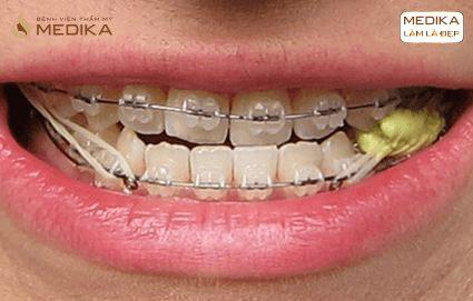 Niềng răng móm ở Nha khoa MEDIKA