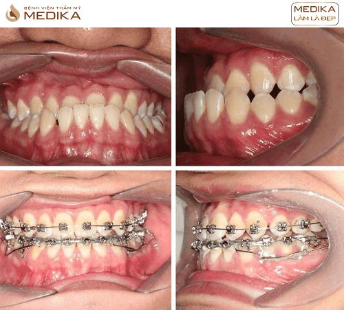 Niềng răng móm tại Nha khoa MEDIKA