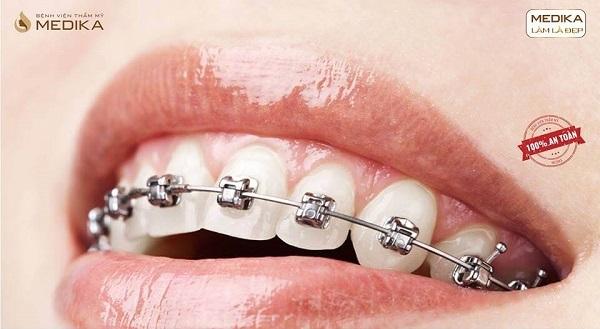 Phương pháp niềng răng thẩm mỹ sắp xếp lại vị trí răng MEDIKA
