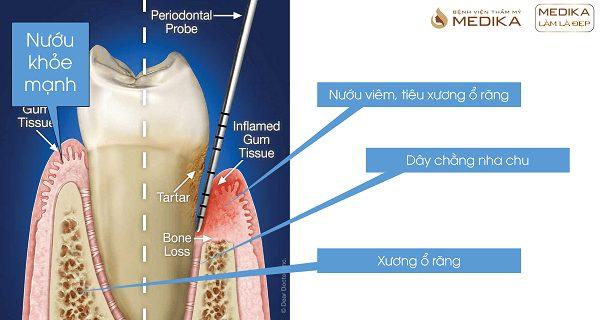 Quá trình hình thành viêm nha chu Nha khoa MEDIKA