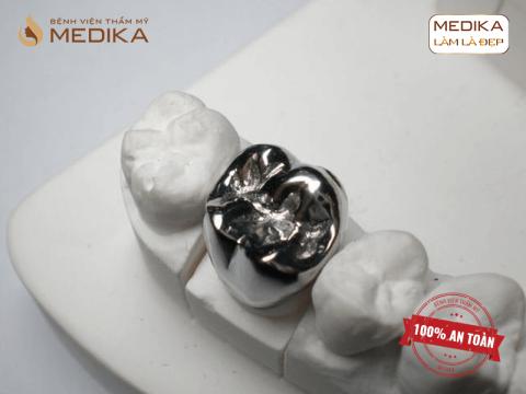 Răng đúc kim loại - Cố định