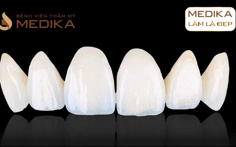 Răng sứ Zirconia Plus – Cố định