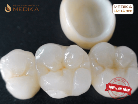 Răng sứ Zirconia – Cố định