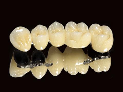 Răng sứ KL Ceramco III - Cố định