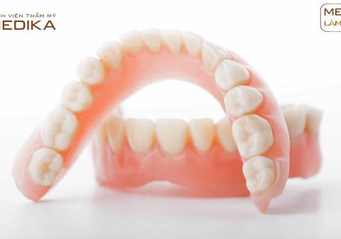 Răng sứ - Tháo lắp