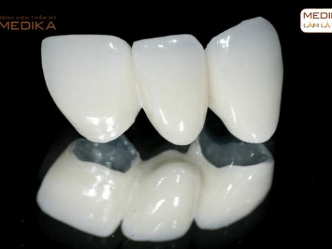 Răng sứ Titan - Cố định